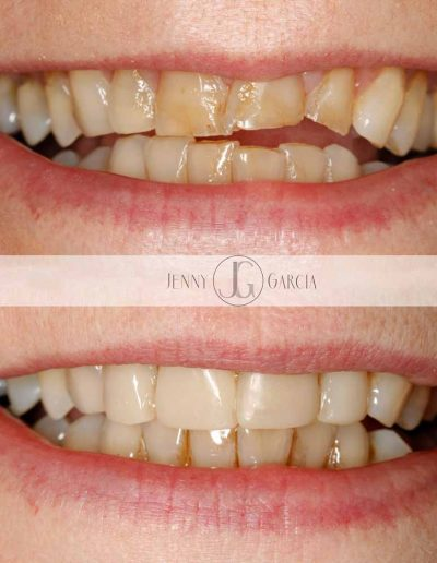 Close up showing before and after composite bonding treatment from Godmanchester Dental Huntingdon