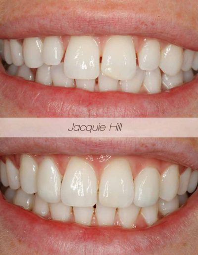 Close up of before and after composite bonding treatment from Godmanchester Dental Huntingdon