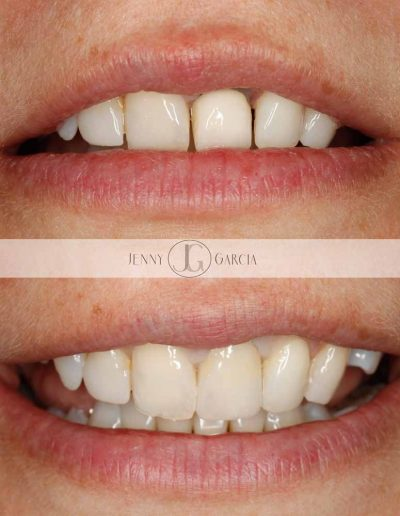Close up of before and after crown treatment at Godmanchester Dental Huntingdon