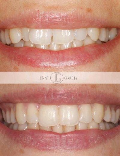 Close up of before and after Invisalign, invisible braces for straight teeth for a beautiful smile