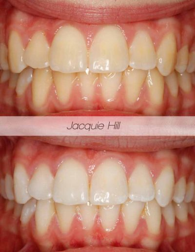 Close up of before and after Enlighten tooth whitening treatment Godmanchester Dental Huntingdon