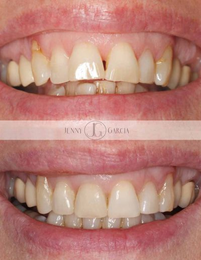 Close up of before and after Invisalign invisible braces for straight teeth