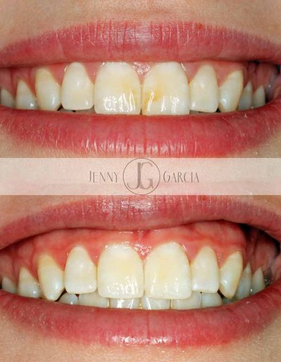 Close up of before and after tooth whitening and white spot removal at Godmanchester Dental Huntingdon