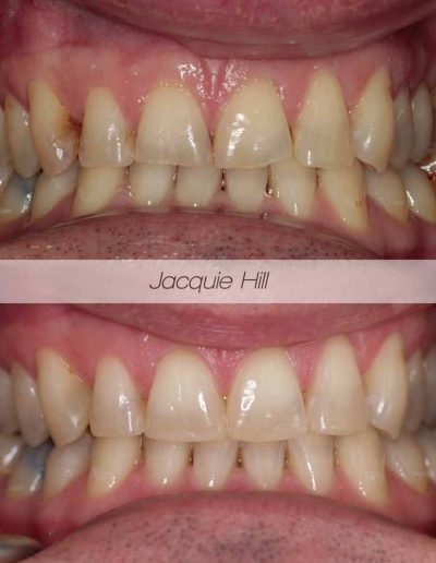 Close up of before and after tooth whitening treatment Godmanchester Dental Huntingdon